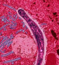 Sri Lanka eliminates malaria