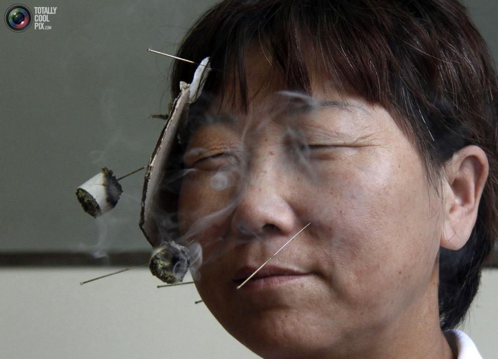 Chinese Facial Paralysis