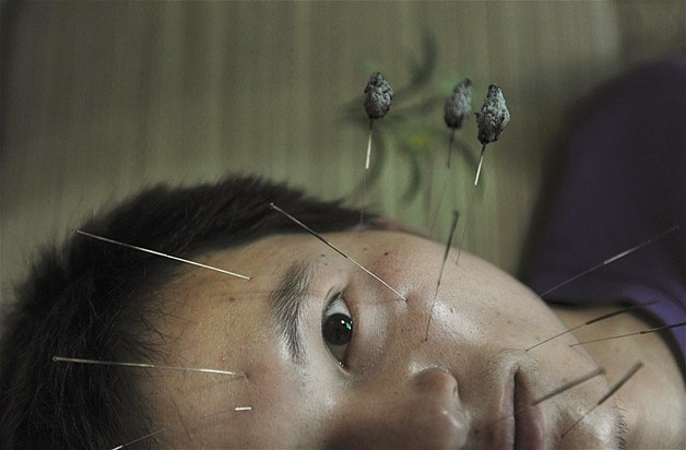 Chinese Paralysis Face Remedy